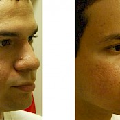 before and after images of best acne treatments - patient 3