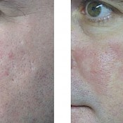 before and after images of best acne treatments - patient 5