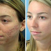 before and after images of best acne treatments - patient 8