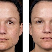 Before and after images of a female patient who successfully underwent laser resurfacing of her face - patient 3.