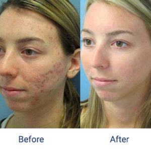Before and after images of a female patient who successfully underwent laser treatment for her acne scars on her left cheek.