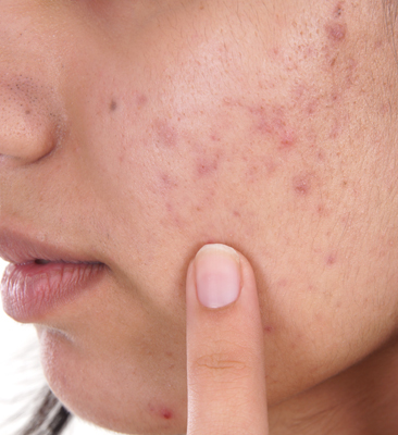 Your Everything Guide to Understanding Acne Scars