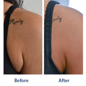 Before and after images of a female patient who successfully underwent Kybella bra fat reduction.