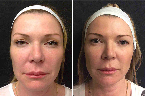 Before and After photos of a female patient who was treated with Silhouette InstaLift Thread Lift treatment